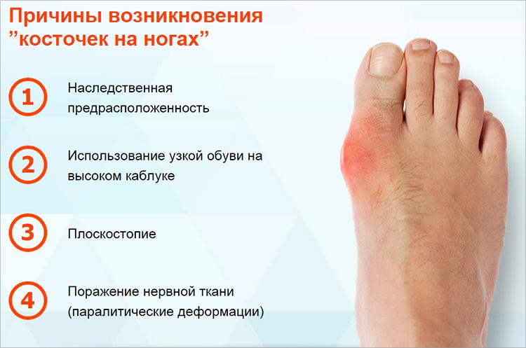 Диагностика и лечение бурсита большого пальца стопы