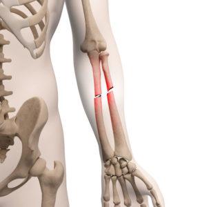 Изображение - Контрактура локтевого сустава как лечить diagnostika-i-lechenie-kontraktury-loktevogo-sustava-posle-pereloma-3