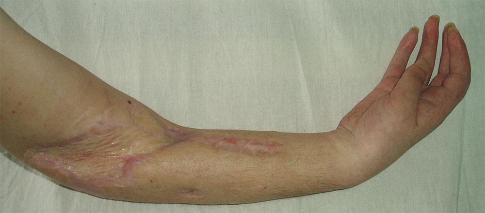 Изображение - Контрактура локтевого сустава как лечить diagnostika-i-lechenie-kontraktury-loktevogo-sustava-posle-pereloma-6