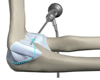 Изображение - Контрактура локтевого сустава как лечить diagnostika-i-lechenie-kontraktury-loktevogo-sustava-posle-pereloma-8