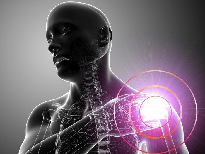 Диагностика и методы лечения плечелопаточный периартроза