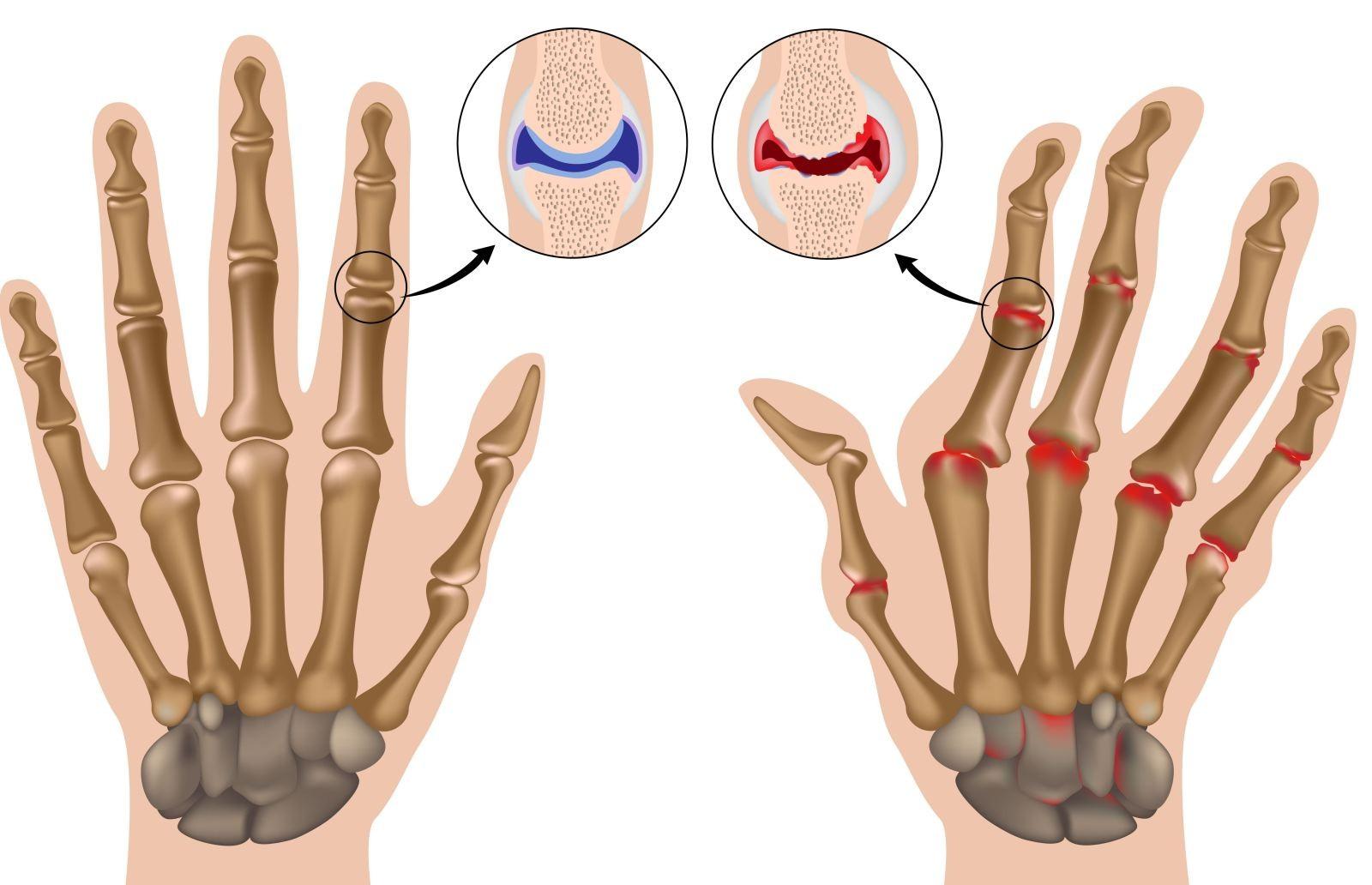 Диагностика, лечение и профилактика аллергического артрита