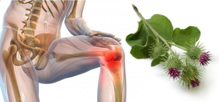 Эффективное лечение лопухом при  болях в суставах