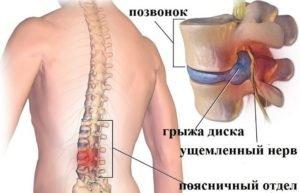 Эффективность иглорефлексотерапии при грыже позвоночника поясничного отдела
