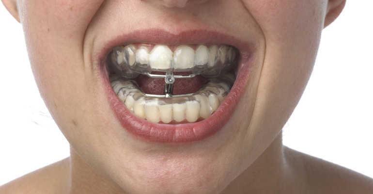 Эффективность методики шинирования челюсти при переломе