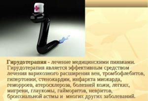 Эффективность применения пиявок при остеохондрозе шейного отдела