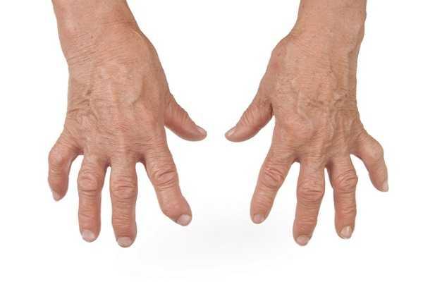 Эффективные методы лечения бурсита кисти руки