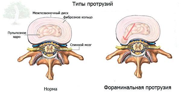 Эффективные упражнения для лечения протрузии шейного отдела позвоночника