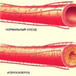 Эффективный биологический активатор препарат Гумизоль