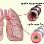 Эффективный препарат Випросал для снятия мышечной и суставной боли