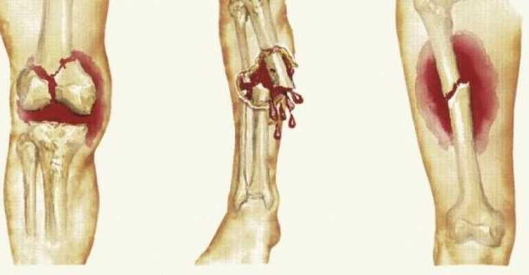 Как долго длится консолидация костей при переломах