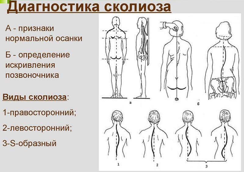 Характерные признаки 1 степени сколиоза и основные методы лечения