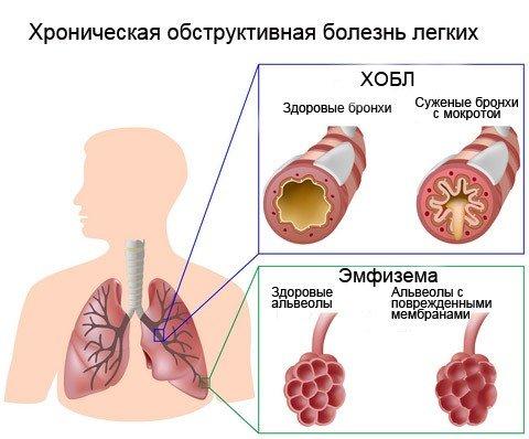 Инструкция по применению геля, таблеток и инъекций Диклофенак