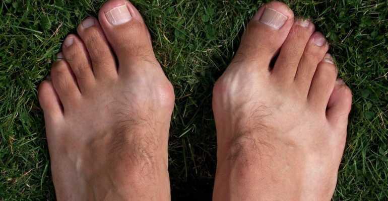 Растет косточка на ноге у большого пальца