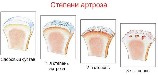 Как лечить артроз при различных степенях заболевания