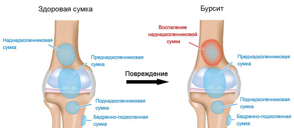 Как лечить бурсит и к какому врачу обратиться
