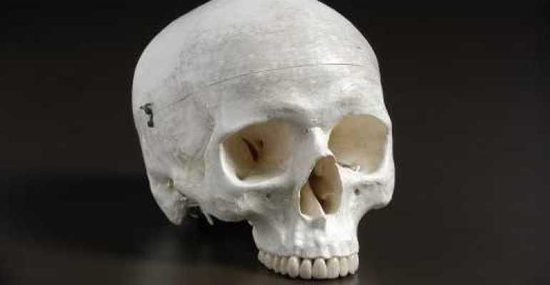 На заметку всем [если младенец упал] ак проявляется перелом черепа у ребенка томография головы младенца