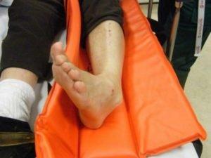 Как определить повреждение голеностопного сустава — вывих или растяжение