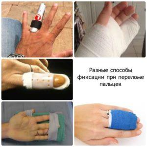 Как поступать при переломе мизинца руки