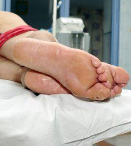 Как правильно оказывать первую помощь при переломах до приезда скорой