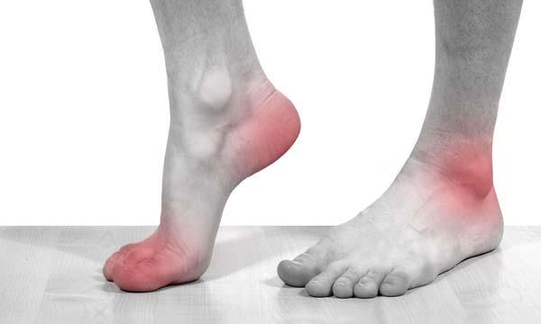 Как проявления у артрита стопы и как его лечить