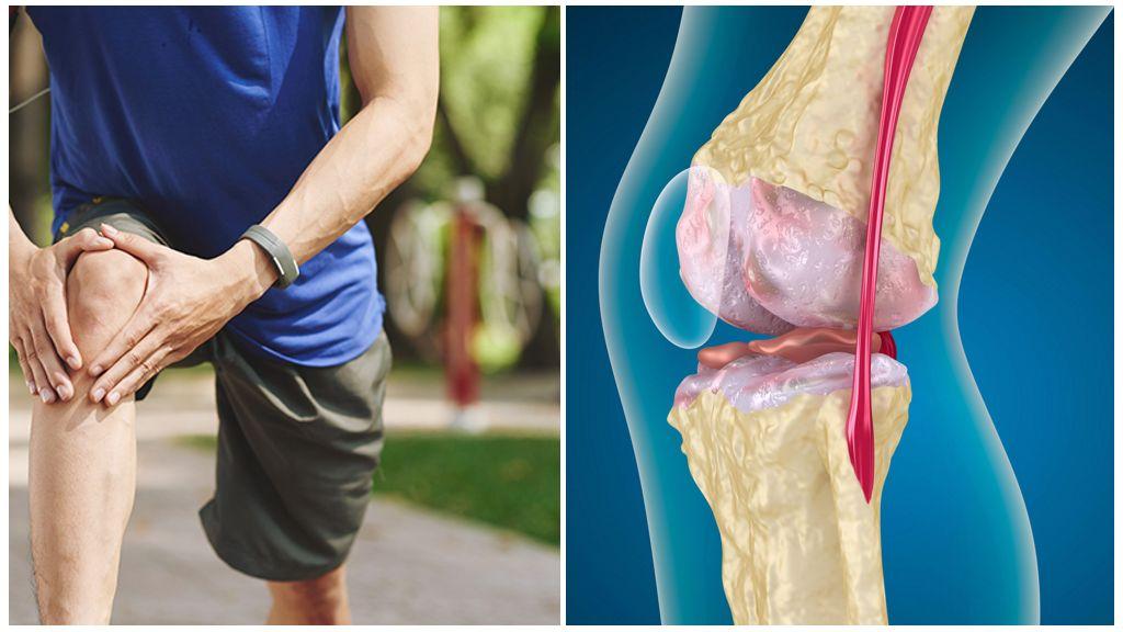 Кто лечит остеоартроз коленного сустава