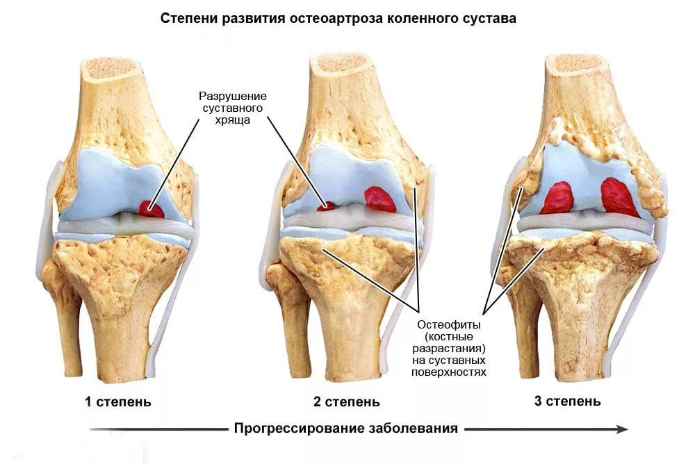 Как строится эффективное лечение гонартроза коленного сустава 2 степени