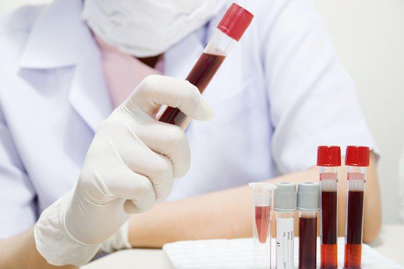 Какие анализы на ревматизм необходимо сдать для постановки диагноза