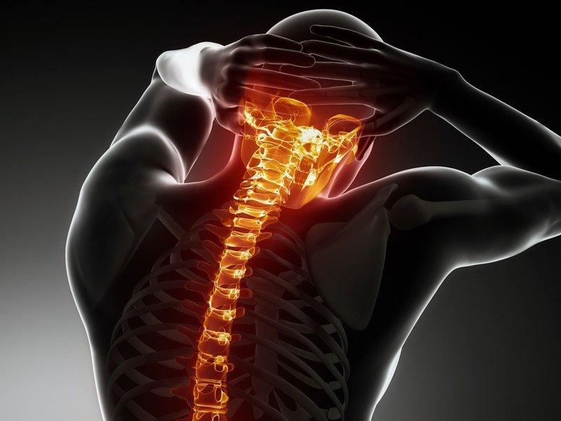 Какие мази от остеохондроза лучше всего применять
