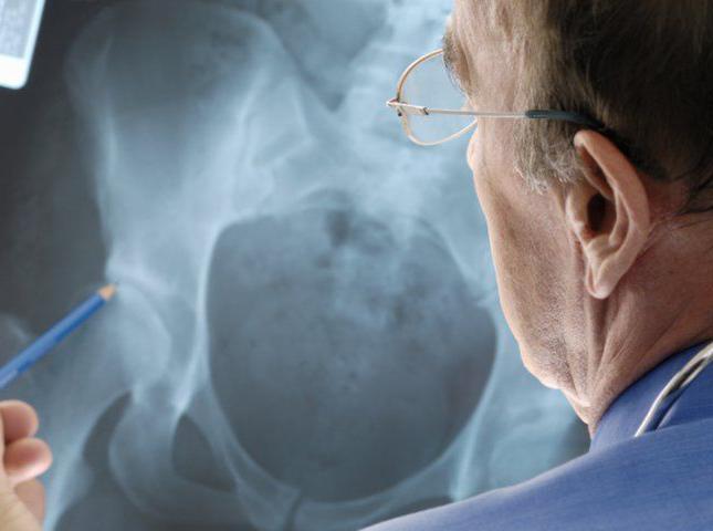 Какие симптомы у остеопороза тазобедренного сустава и как его вылечить?