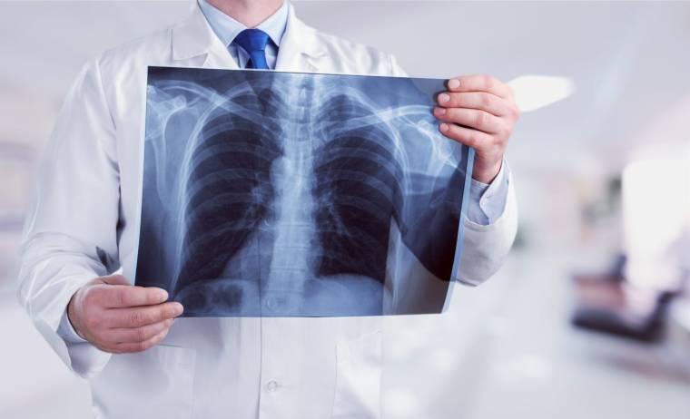 Какие существуют методы диагностики позвоночника