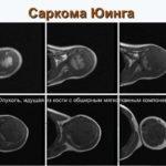 Классификация и методы лечения опухолей кости