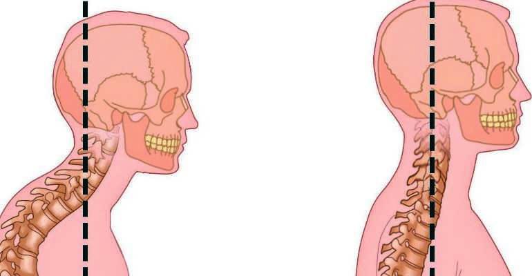 Что такое гиперлордоз шейного отдела позвоночника?