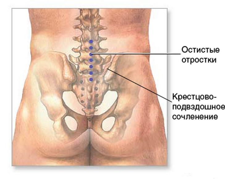 Лечение артроза крестцово-подвздошных сочленений