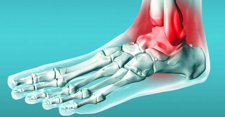 Трехлодыжечный перелом: симптомы, первая помощь и лечение