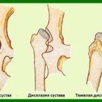 Лечение и диагностика гиперлордоза поясничного отдела позвоночника