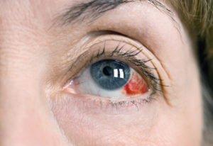 Лечение ревматоидного артрита препаратом Плаквенил