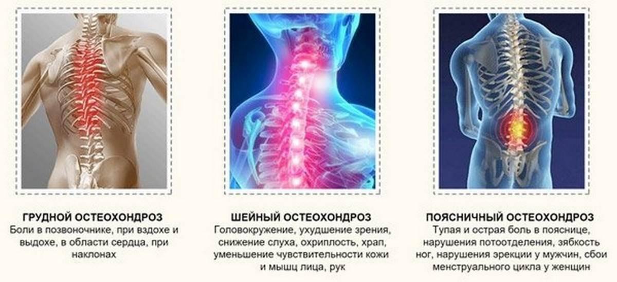 Болевой синдром при остеохондрозе препараты
