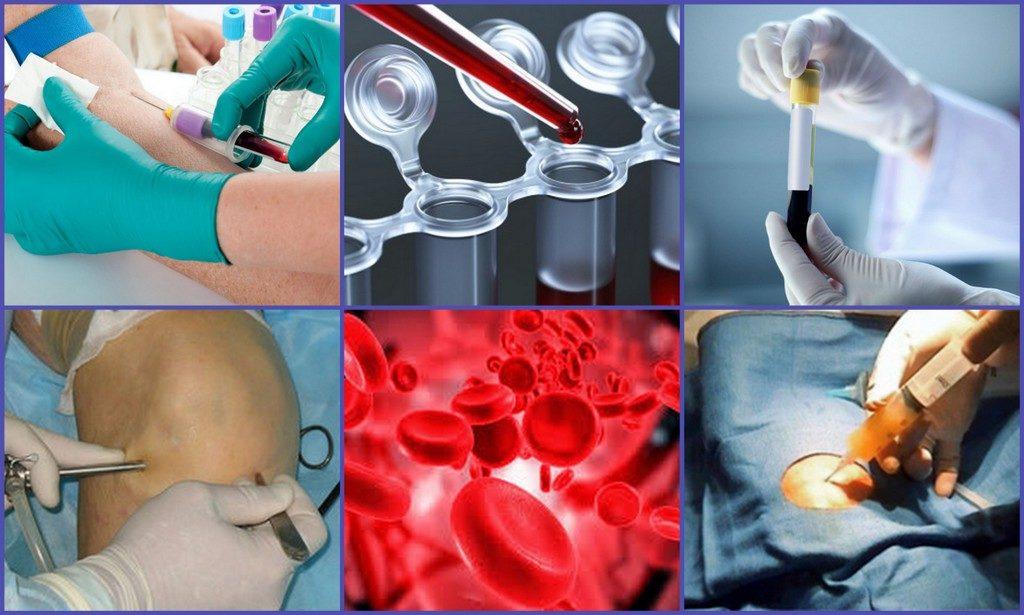 Лучшие методики лечения хронического артрита с указанием причин