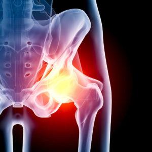 Методы борьбы с синовитом тазобедренного сустава