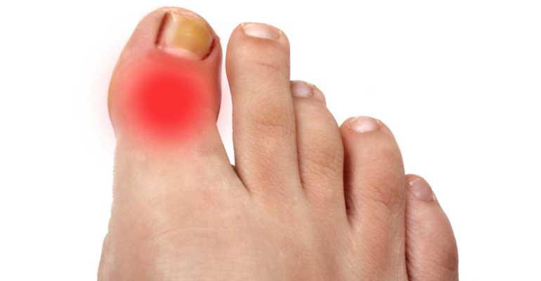 Артроз большого пальца ноги как лечить