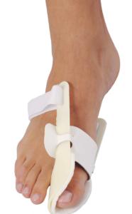 Методы лечения артроза, поразившего большой палец ноги