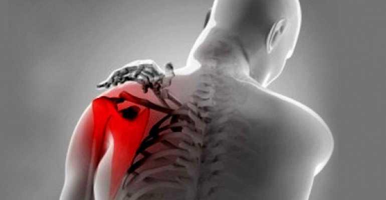 Тендинит надостной мышцы плечевого сустава как лечить