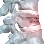 Методы лечения кифоза поясничного отдела позвоночника на разных стадиях