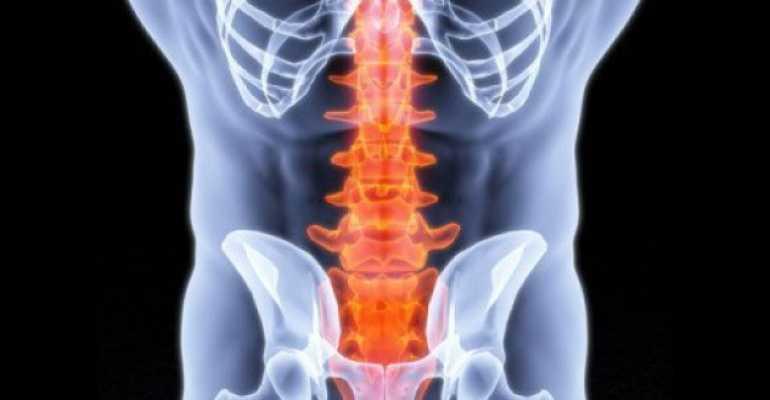 Компрессионный перелом позвоночника поясничного отдела: симптомы, лечение дома