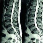 Методы лечения компрессионного перелома позвоночника поясничного отдела