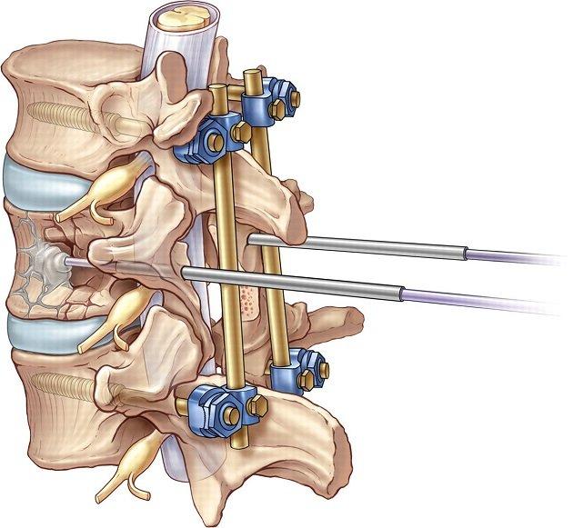 Можно ли полностью восстановиться после переломе позвоночника