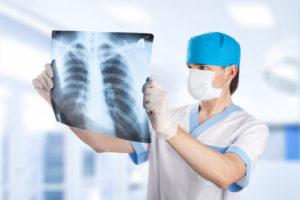 Можно ли увидеть грыжу позвоночника на рентгене