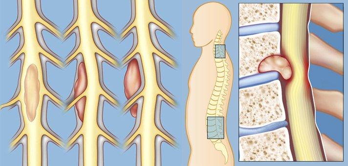 Можно ли вылечить опухоль спинного мозга