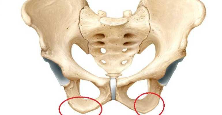 Насколько опасен перелом седалищной кости и как долго проходит восстановление?